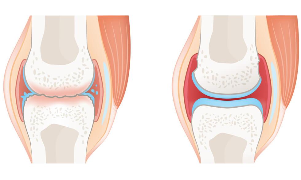 Know The Difference Rheumatoid Arthritis Or Osteoarthritis Nih Medlineplus Magazine